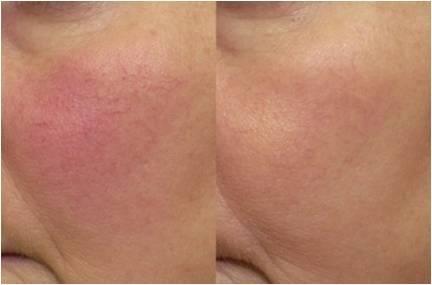 Couperose prima e dopo il trattamento con Laser KTP 532nm