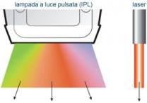 laservsipl