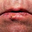 Labbro inferiore con fissurazioni coperte da sangue rappreso e squame cornee sormontanti una ampia cheratosi.