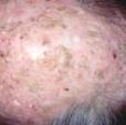 Numerose cheratosi attiniche del cuoio capelluto indicano un danno solare. Sono, di solito, rilevate, ruvide e somigliano a verruche.
