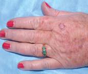 Cheratosi attinica del dorso della mano. Questa precancerosi si sviluppa comunemente sul viso e sul dorso delle mani.